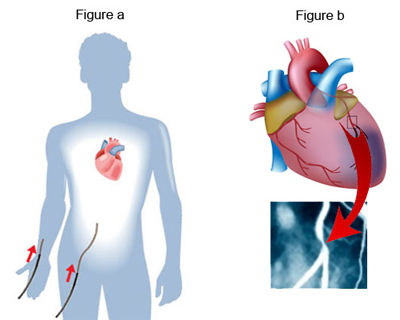 angiogram-Fig-a-and-b