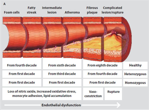 atherosclerosis-development